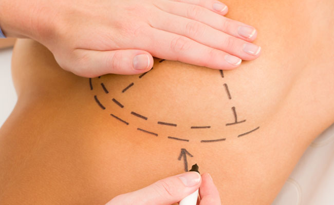 Mamoplastia redutora: Plano de saúde tem cobertura?